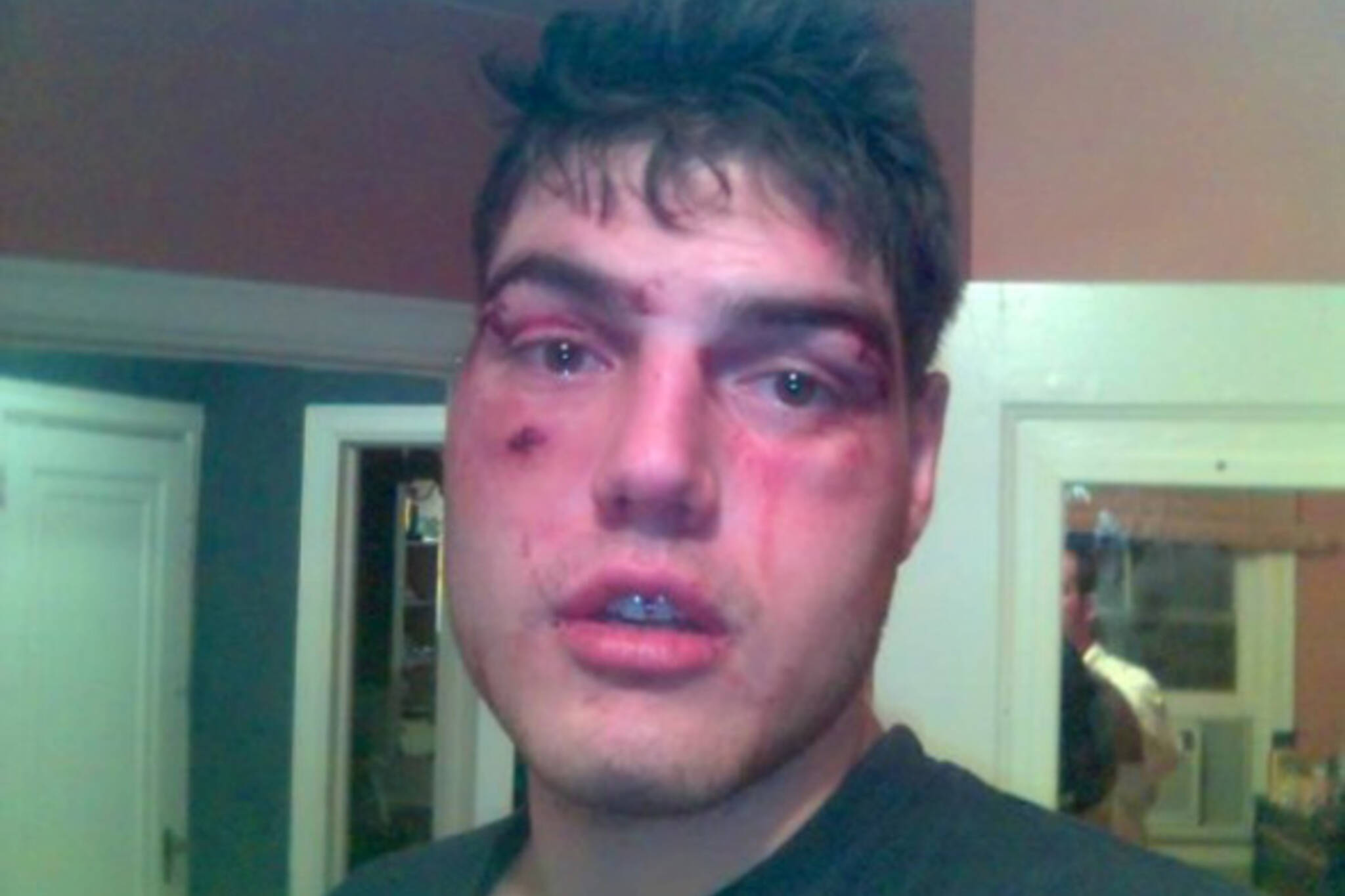 Toronto nightclub bouncers allegedly beat up Barry Ward